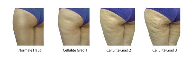 Cellulite-3-Grade